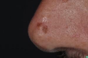 Monitoring moles for melanoma - Dermatology Affiliate Locations